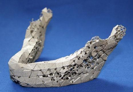 Fraunhaufer-Bone-1