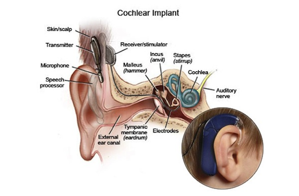 cochlear-implant-diagram-3col