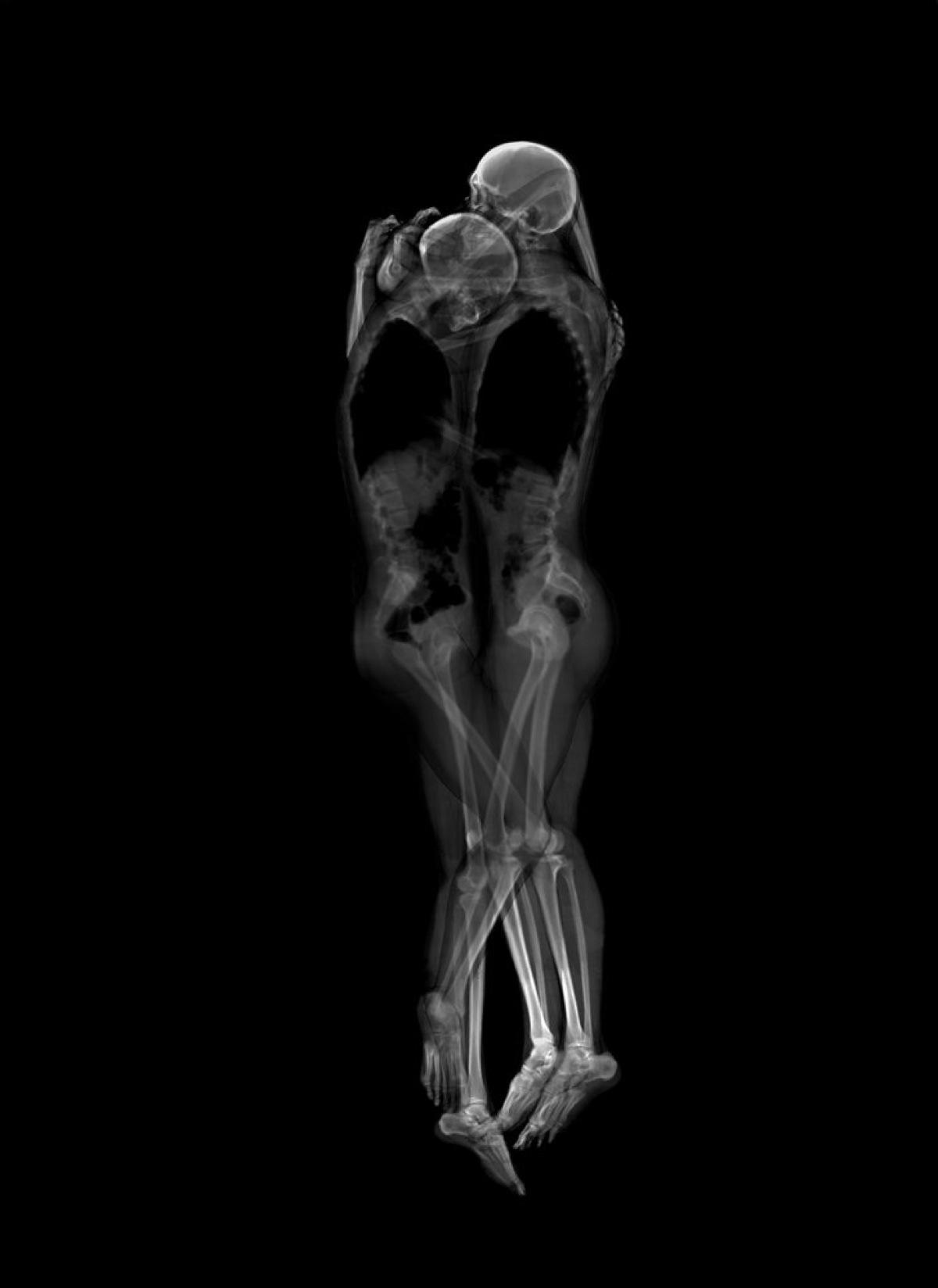 Секс с скелетами 10 фотография
