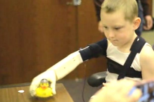 """Engineering students 3-D-print """"bionic"""" arm for 6-year-old — for under $350 #maketheworld #3DThursday #3DPrinting"""
