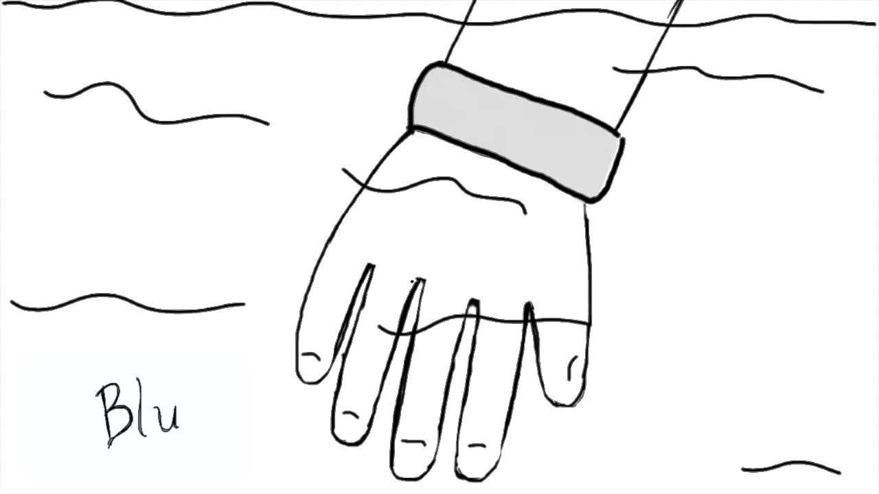 blu  u2013 a wearable sensor  status bracelet  3dxmedicine
