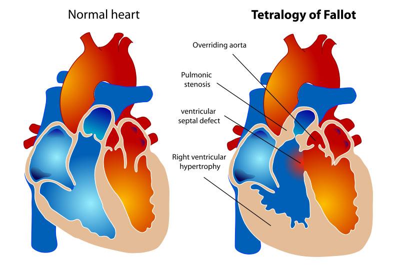 3d printing congenital heart disease