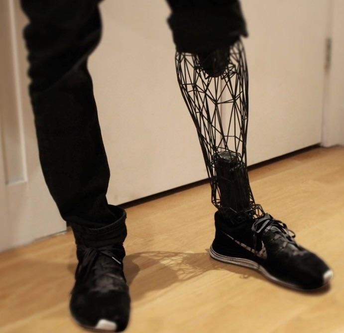 #3Dprinted Exo-Prosthetic Leg Designed To