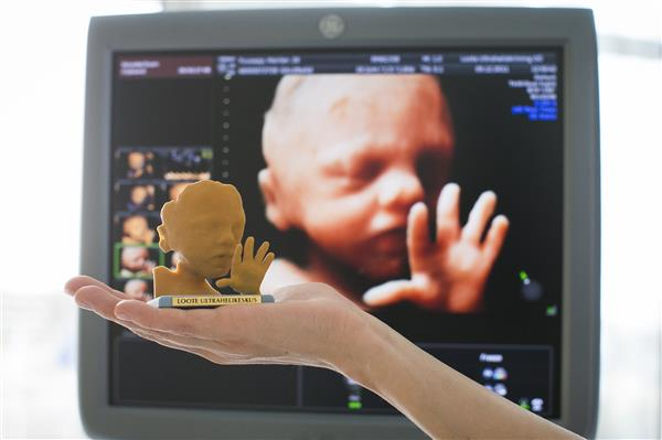 unborn-babies-come-to-life-through-new-full-color-ultrasound-3d-printing-service-1