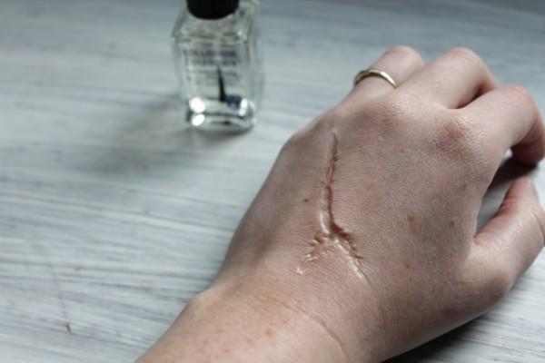 liquid scar 2