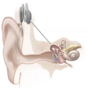 New-strategy-lets-cochlear-implant-users-hear-music