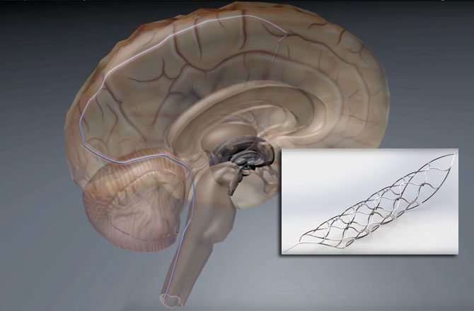 Bionic spinal cord could help paralyzed walk again 670