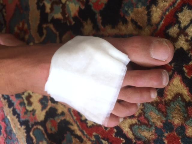 DMSO paper towel on foot