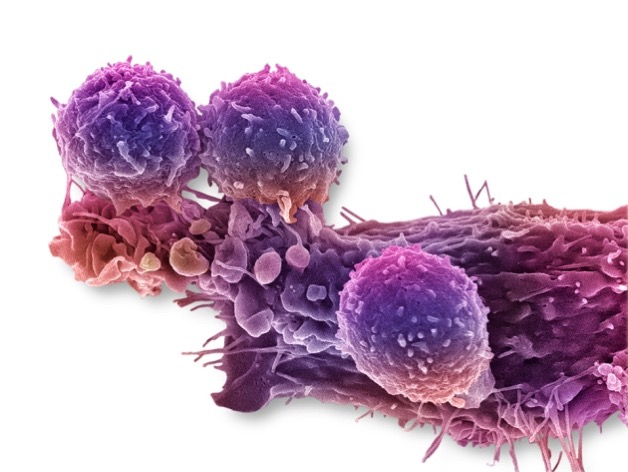 C0288779 Cancer cell and T lymphocytes SEM SPL WEB