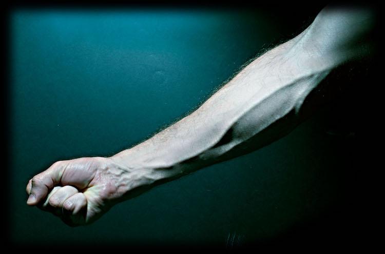arm-veins