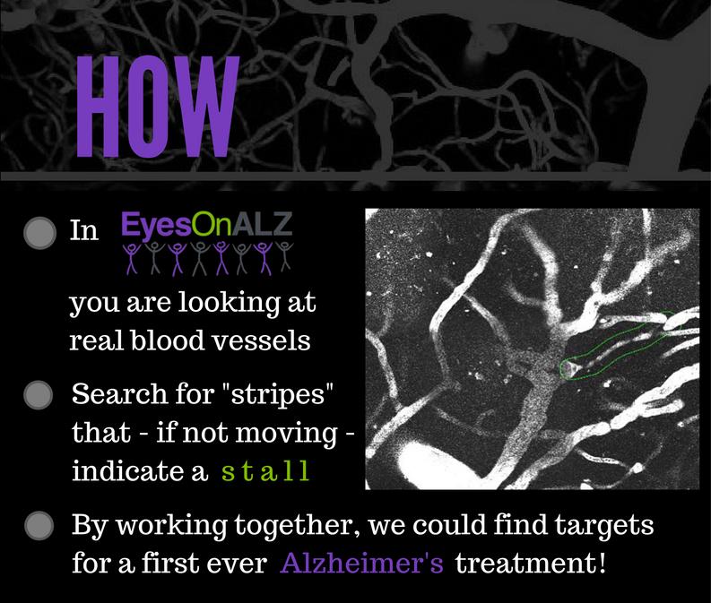 Alzheimers Game CitizenScience
