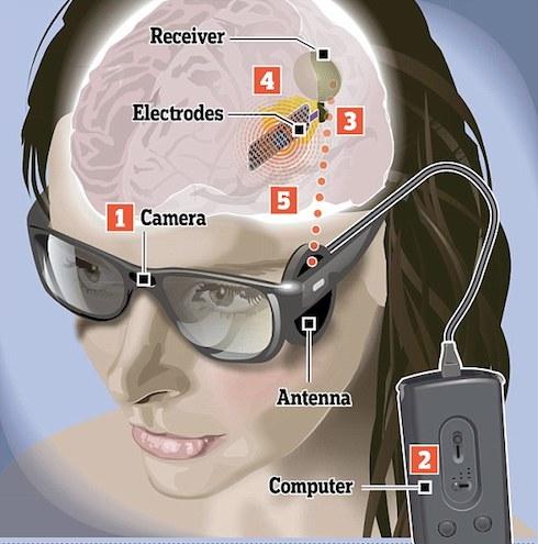 bionic-eye-1
