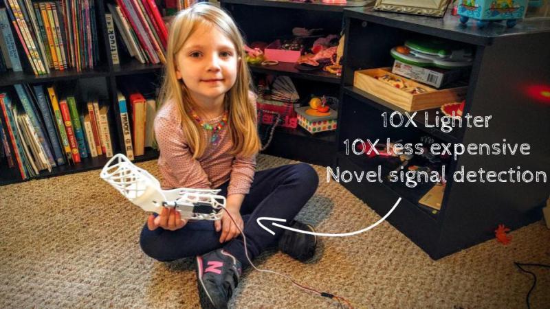 Girl Gets Robotic Arm