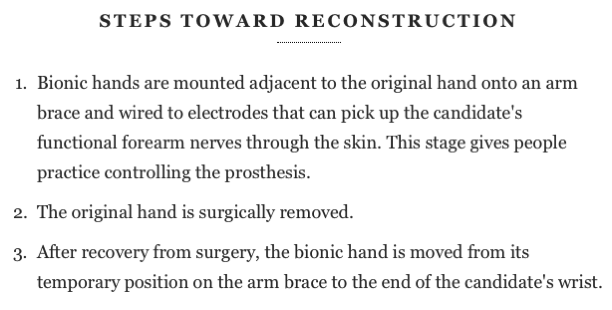 Disabled Hands Successfully Replaced with Bionic Prosthetics Scientific American