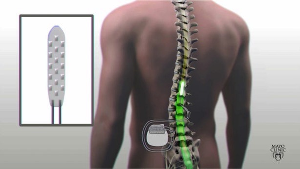 Spinal cord stimulation 1